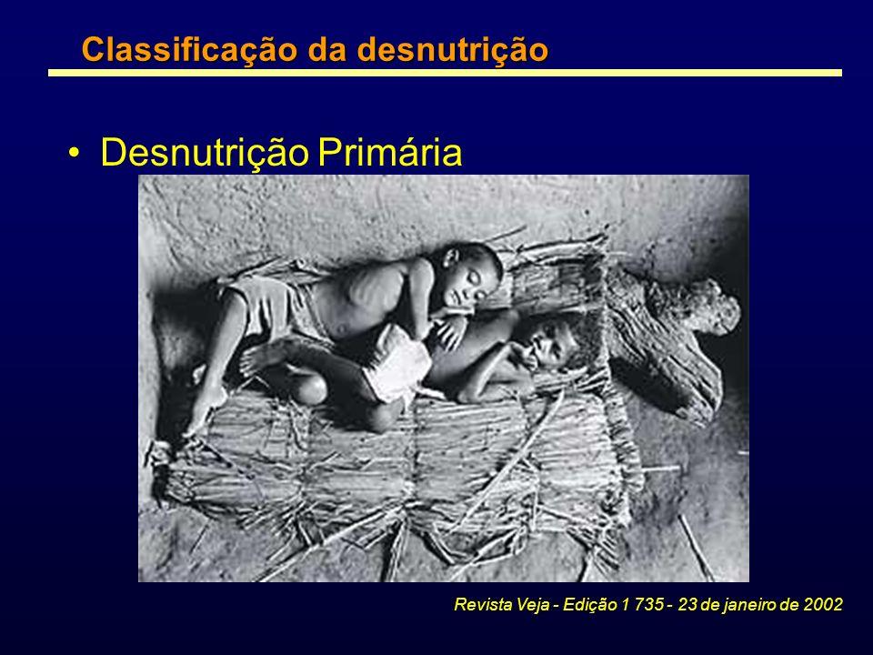 Desnutrição Primária Classificação da desnutrição