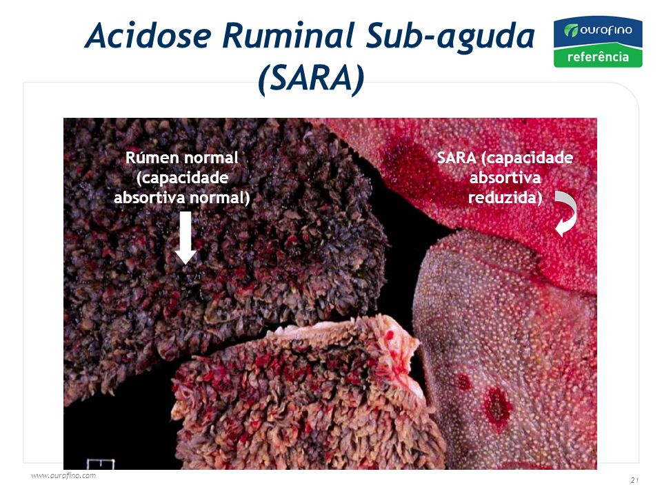 Acidose Ruminal Sub-aguda (SARA)