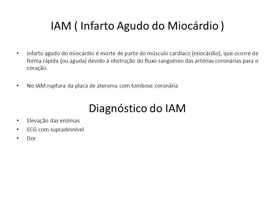 IAM ( Infarto Agudo do Miocárdio )