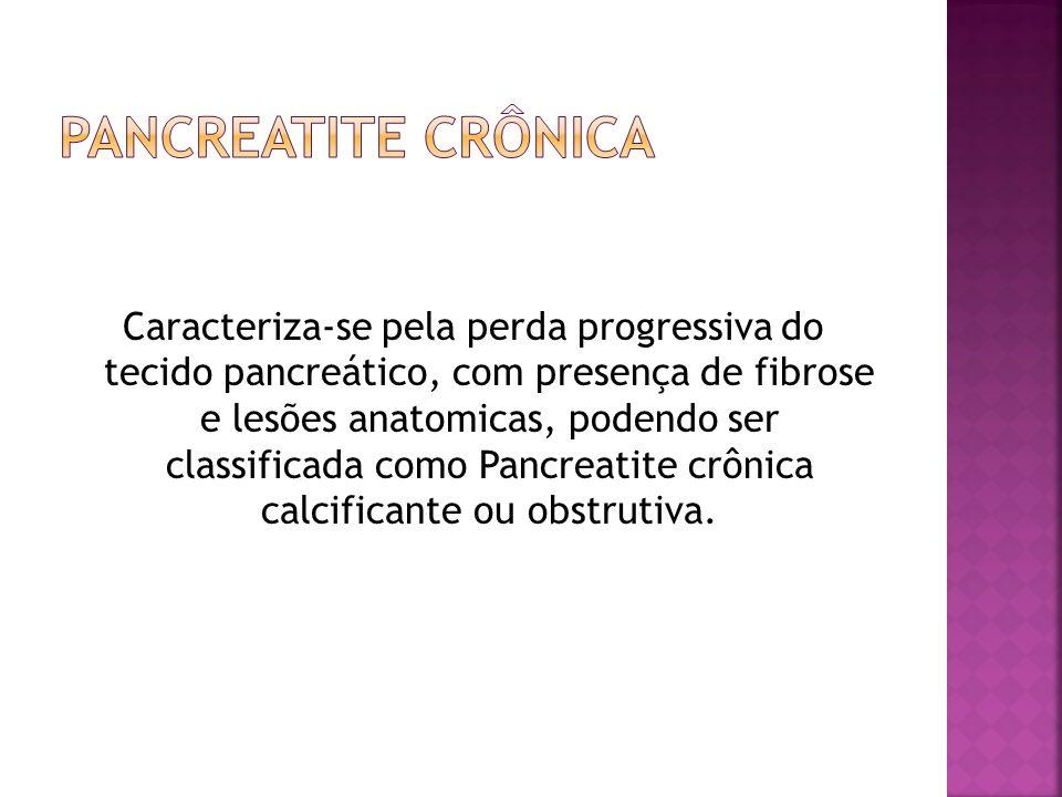Pancreatite Crônica