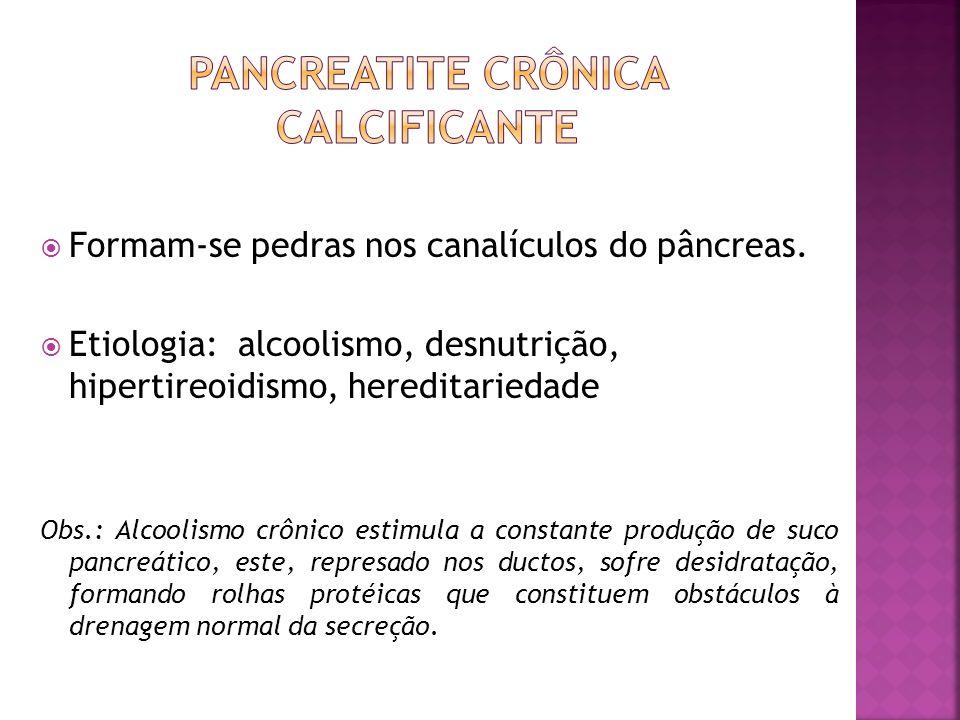 Pancreatite Crônica Calcificante