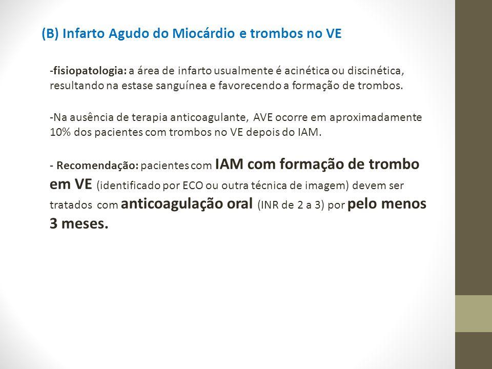 (B) Infarto Agudo do Miocárdio e trombos no VE