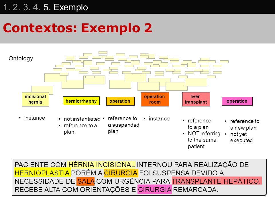 Contextos: Exemplo 2 1. 2. 3. 4. 5. Exemplo