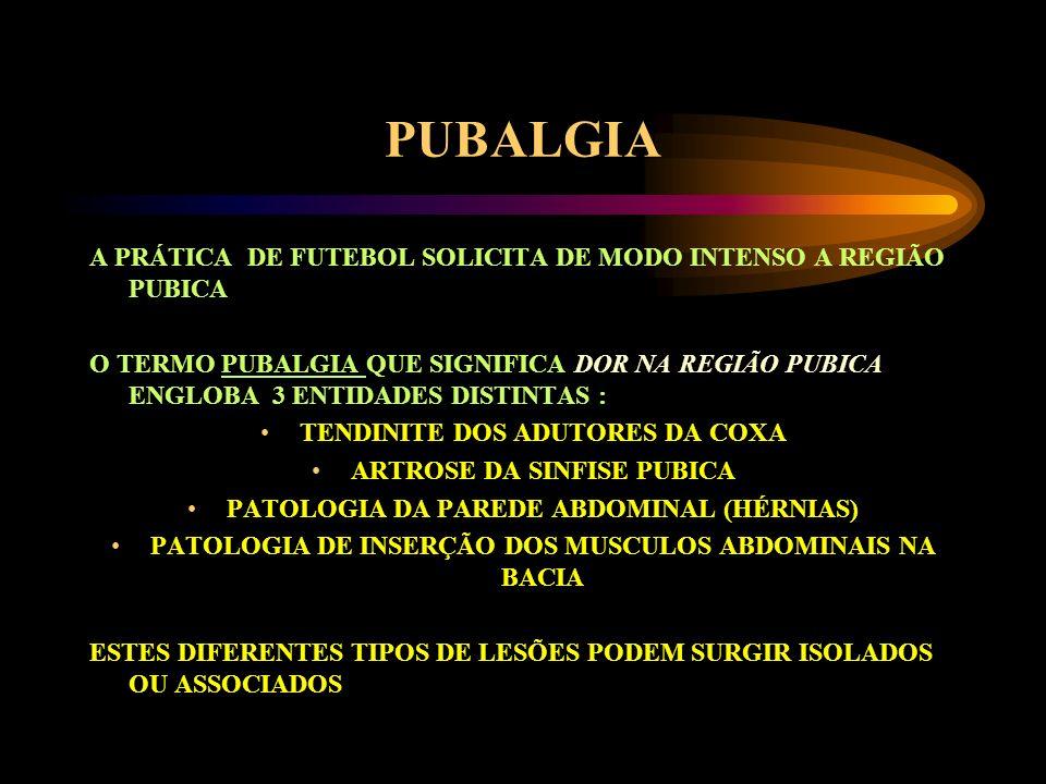PUBALGIA A PRÁTICA DE FUTEBOL SOLICITA DE MODO INTENSO A REGIÃO PUBICA