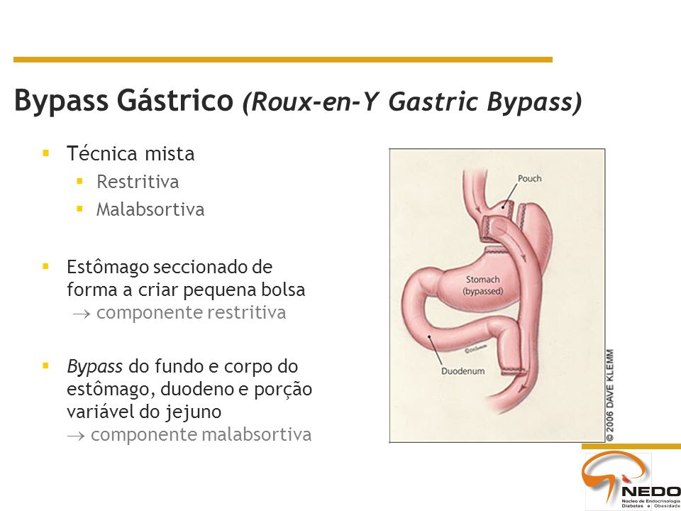 Bypass Gástrico (Roux-en-Y Gastric Bypass)