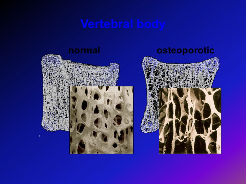 Vertebral body normal osteoporotic