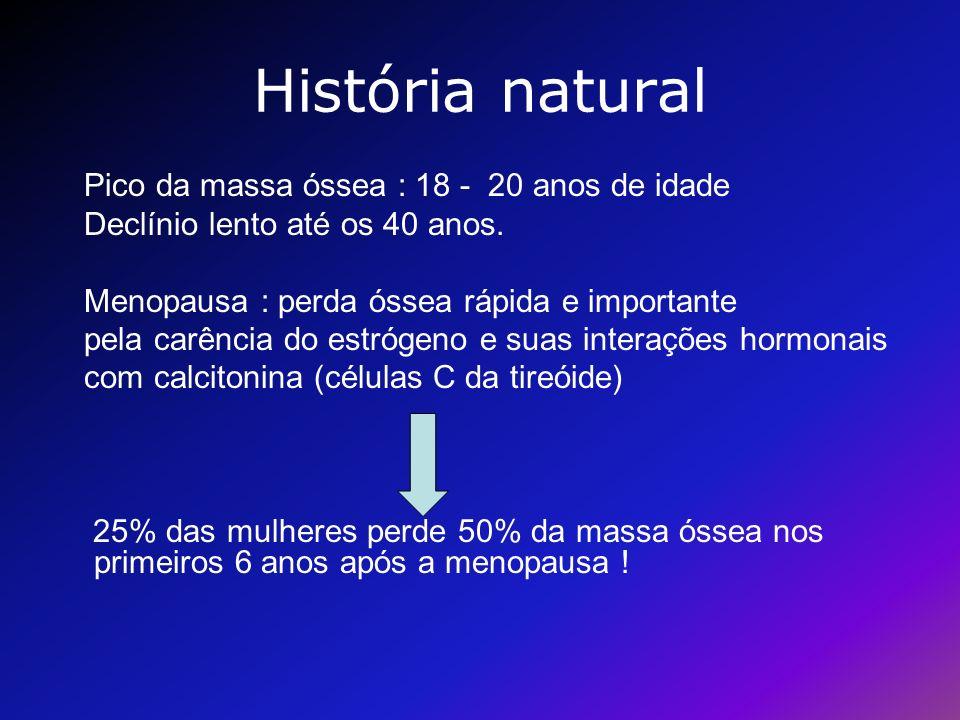 História natural Pico da massa óssea : 18 - 20 anos de idade