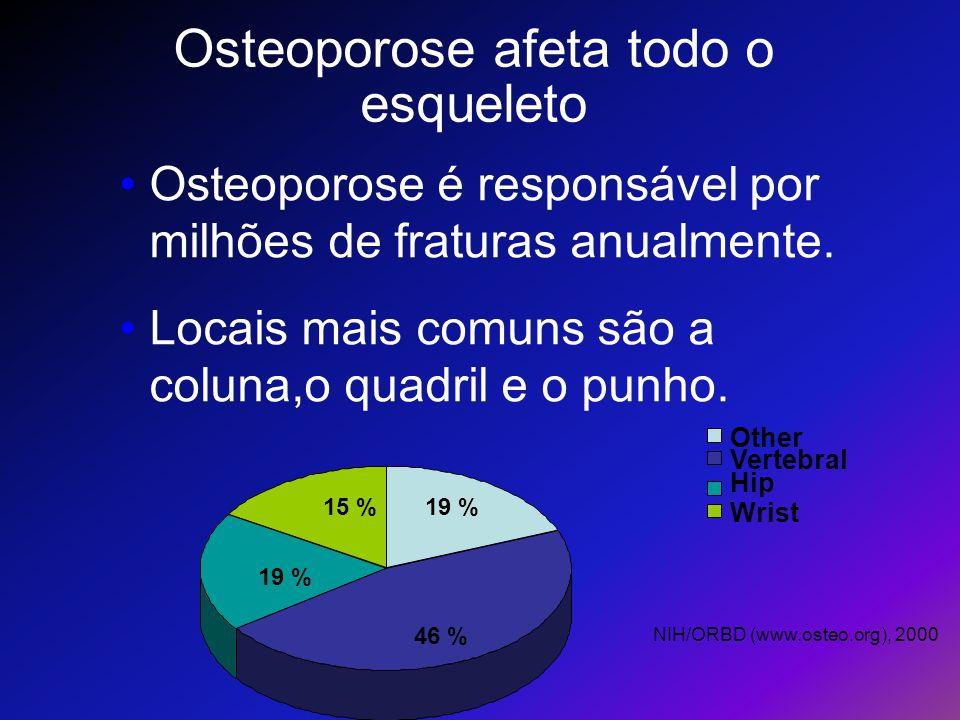 Osteoporose afeta todo o esqueleto