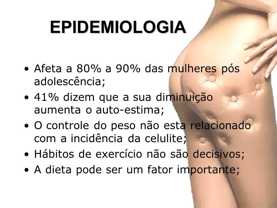 EPIDEMIOLOGIA Afeta a 80% a 90% das mulheres pós adolescência;