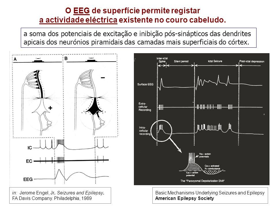 O EEG de superfície permite registar a actividade eléctrica existente no couro cabeludo.