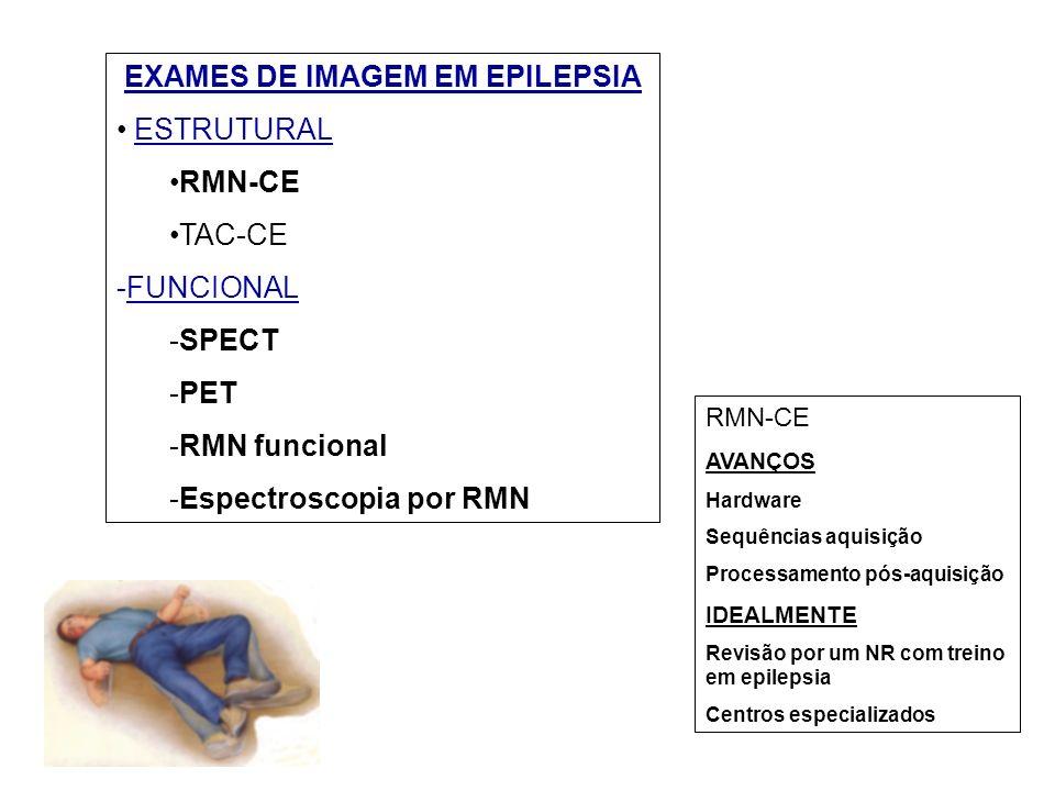 EXAMES DE IMAGEM EM EPILEPSIA