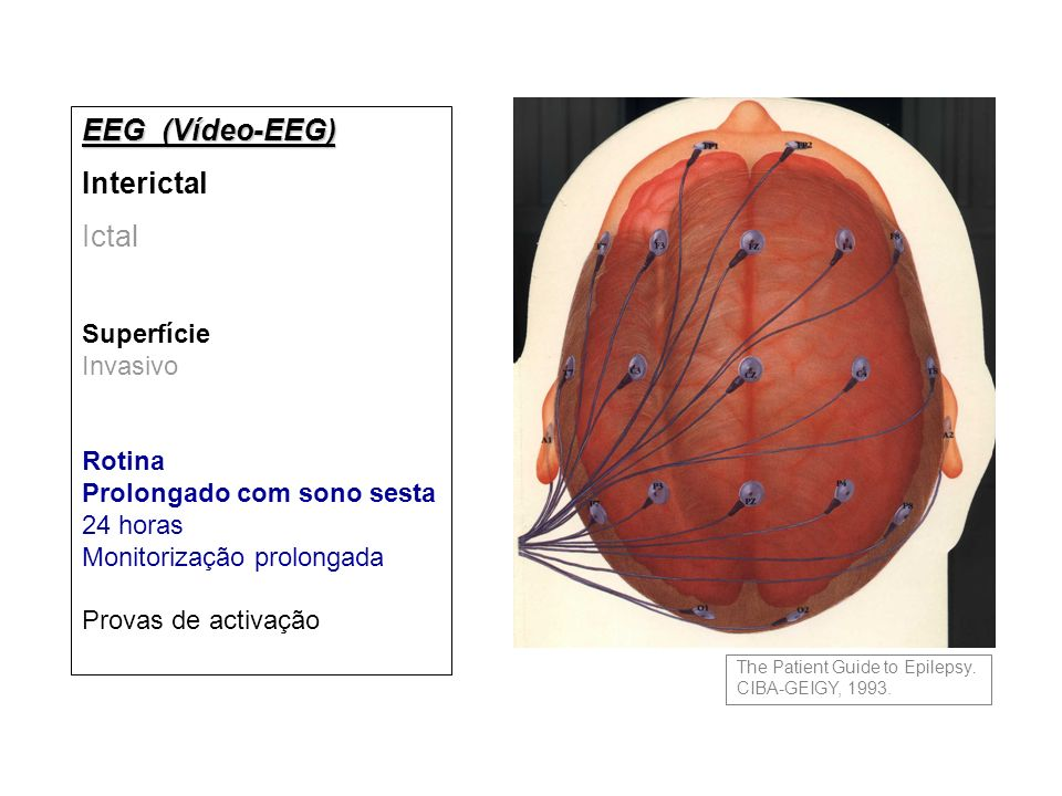 EEG (Vídeo-EEG) Interictal Ictal Superfície Invasivo Rotina