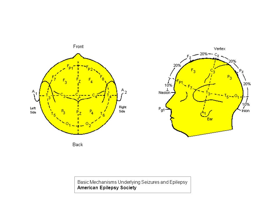 Basic Mechanisms Underlying Seizures and Epilepsy American Epilepsy Society