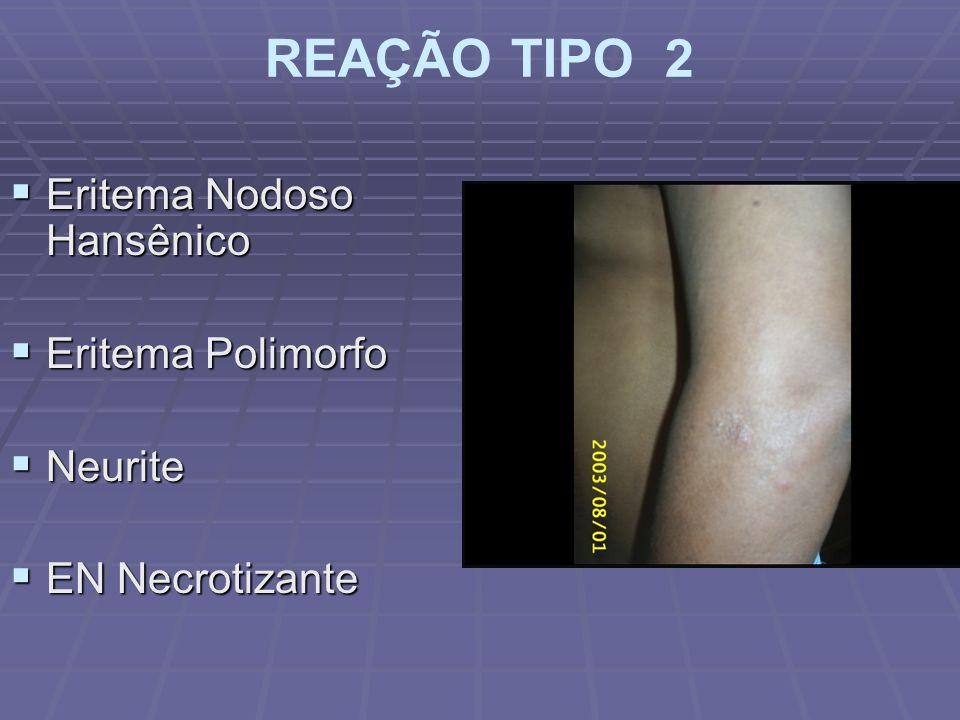 REAÇÃO TIPO 2 Eritema Nodoso Hansênico Eritema Polimorfo Neurite