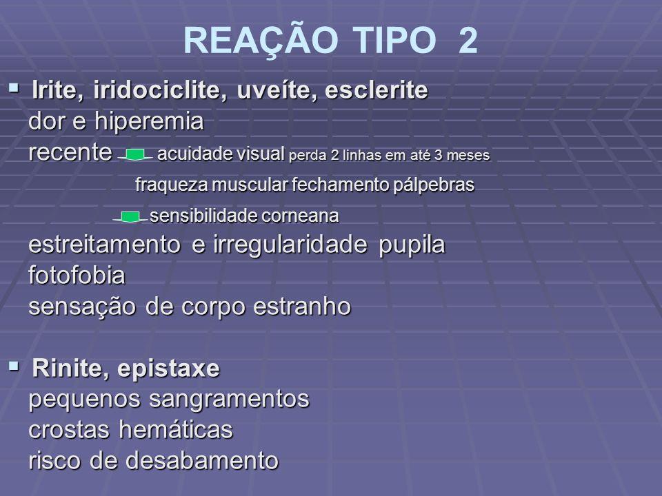 REAÇÃO TIPO 2 Irite, iridociclite, uveíte, esclerite dor e hiperemia