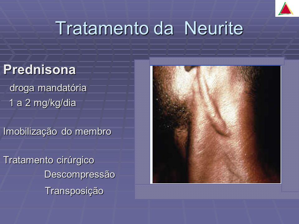 Tratamento da Neurite Prednisona droga mandatória Transposição