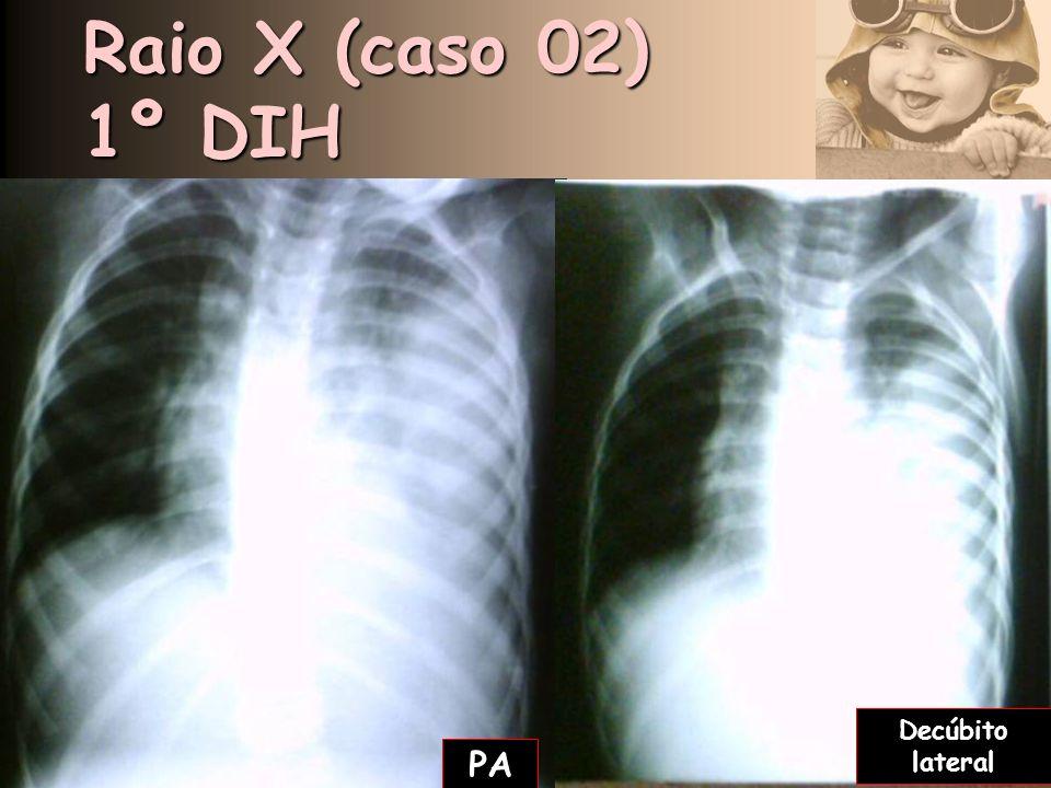 Raio X (caso 02) 1º DIH Decúbito lateral PA