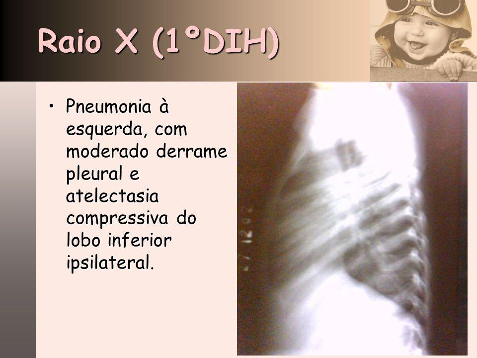 Raio X (1ºDIH) Pneumonia à esquerda, com moderado derrame pleural e atelectasia compressiva do lobo inferior ipsilateral.