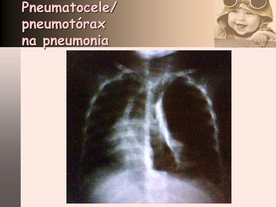 Pneumatocele/ pneumotórax na pneumonia