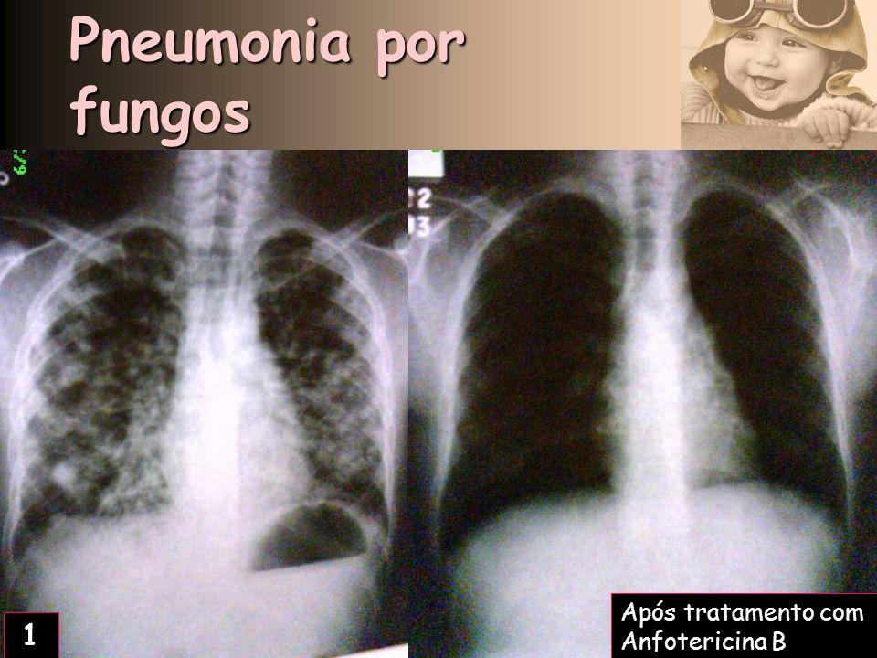 Pneumonia por fungos Após tratamento com Anfotericina B 1 2