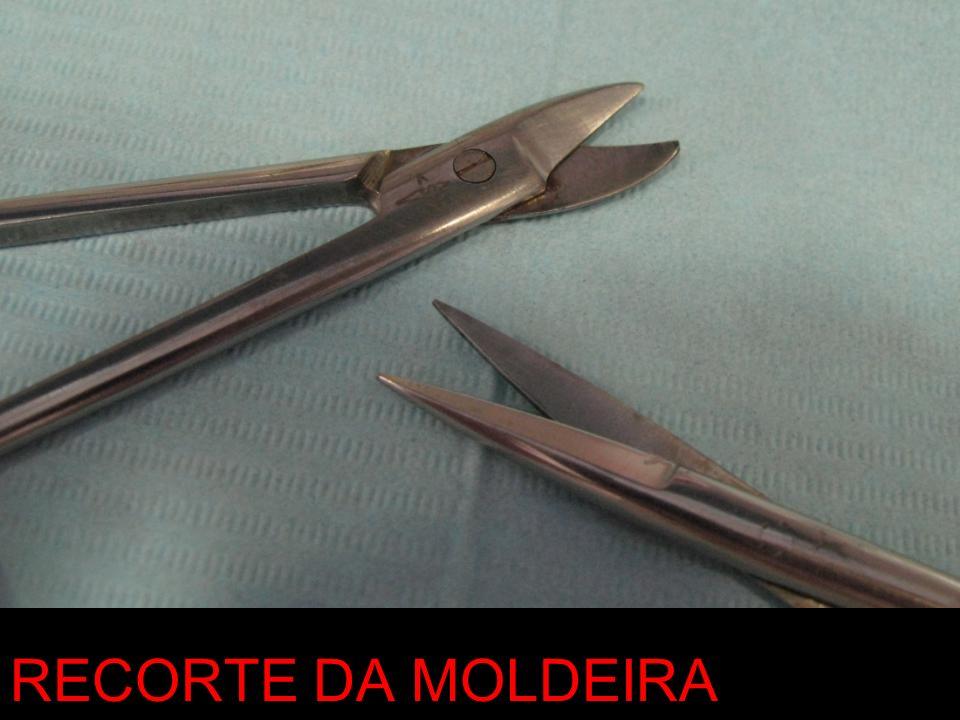 RECORTE DA MOLDEIRA