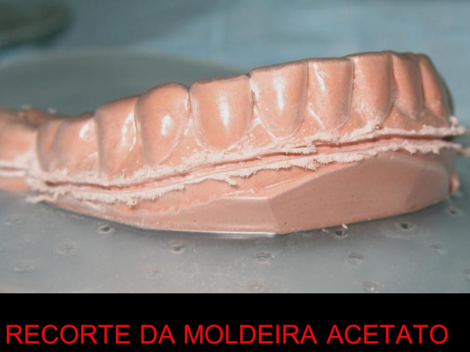 RECORTE DA MOLDEIRA ACETATO