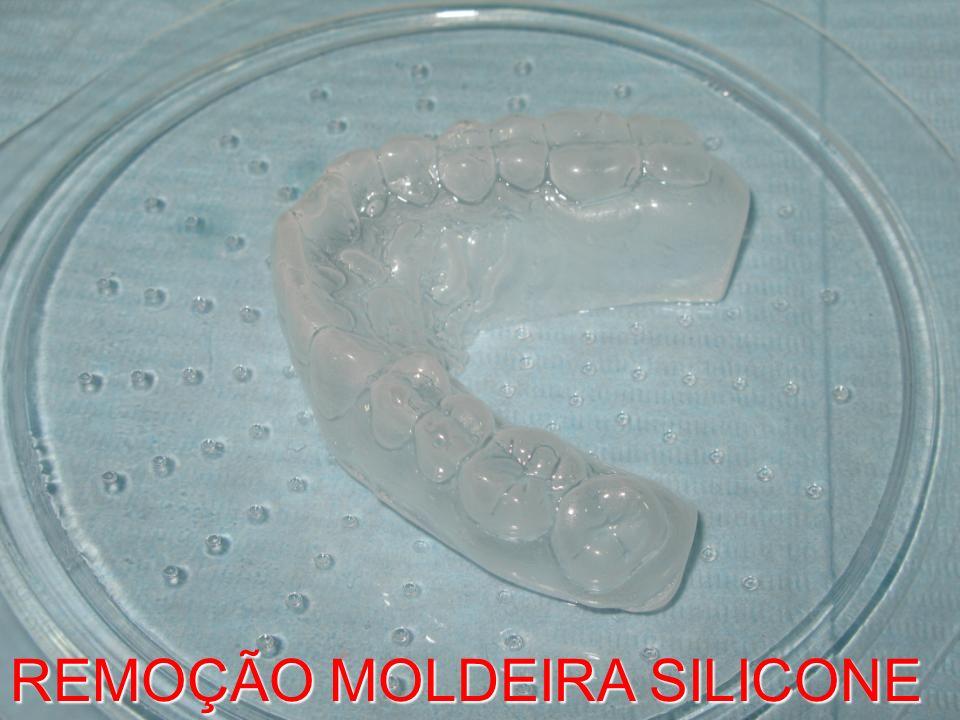 REMOÇÃO MOLDEIRA SILICONE