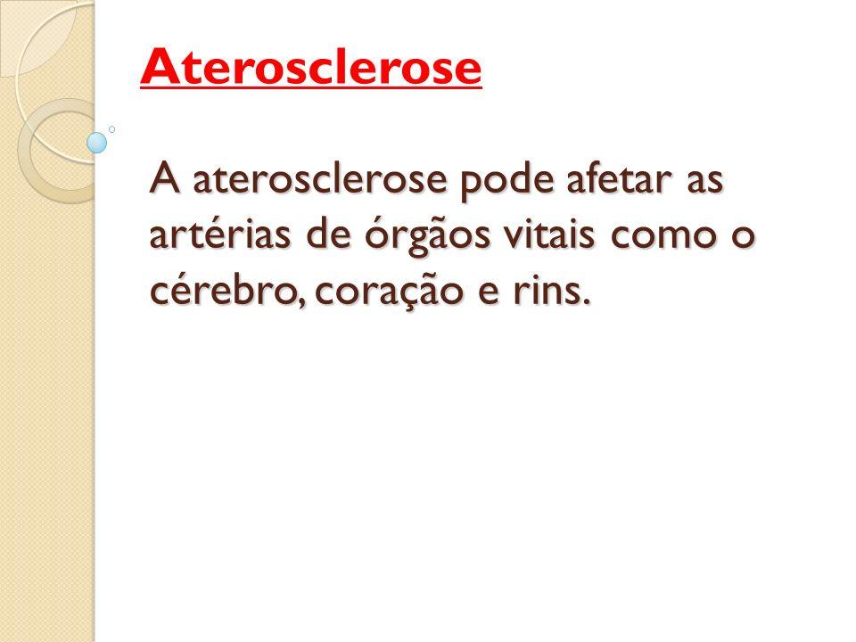 Aterosclerose A aterosclerose pode afetar as artérias de órgãos vitais como o cérebro, coração e rins.