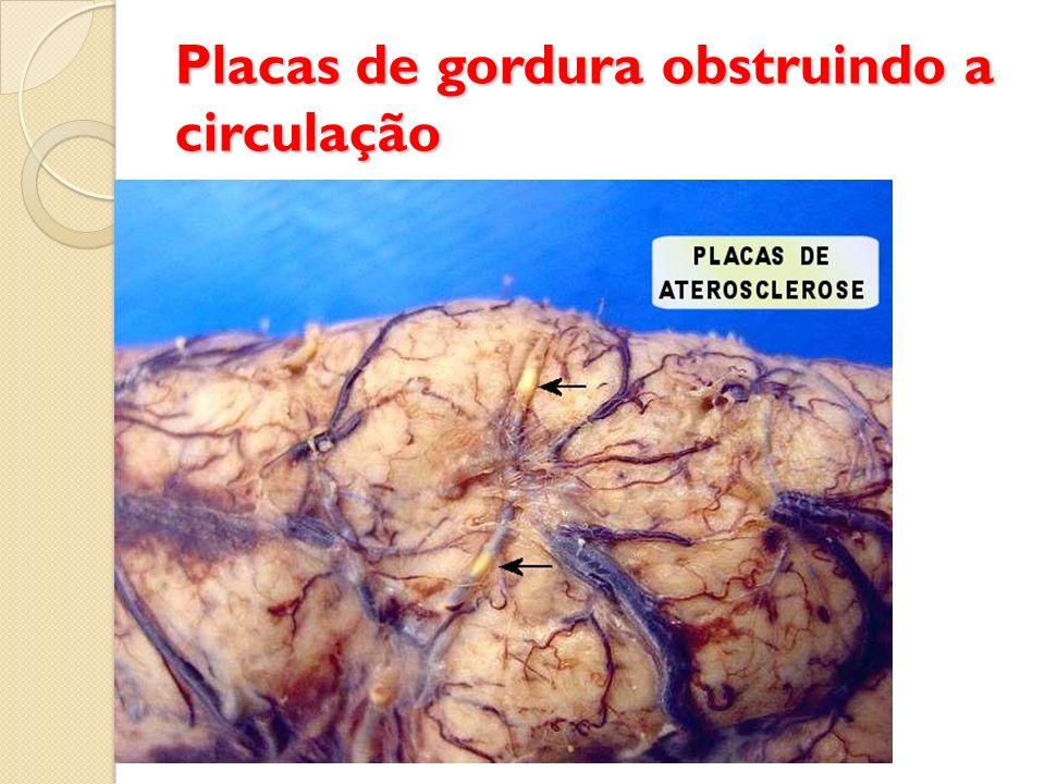 Placas de gordura obstruindo a circulação
