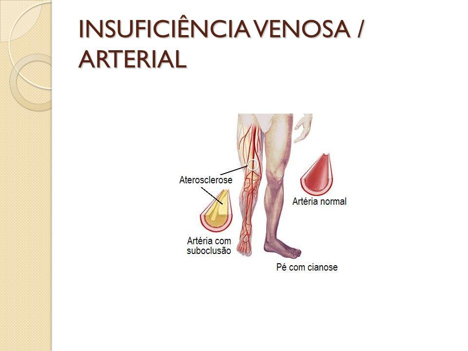INSUFICIÊNCIA VENOSA / ARTERIAL