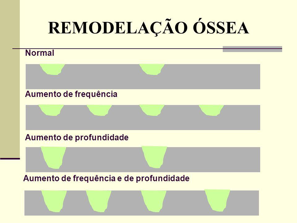 REMODELAÇÃO ÓSSEA Normal Aumento de frequência Aumento de profundidade