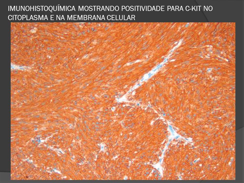 IMUNOHISTOQUÍMICA MOSTRANDO POSITIVIDADE PARA C-KIT NO CITOPLASMA E NA MEMBRANA CELULAR