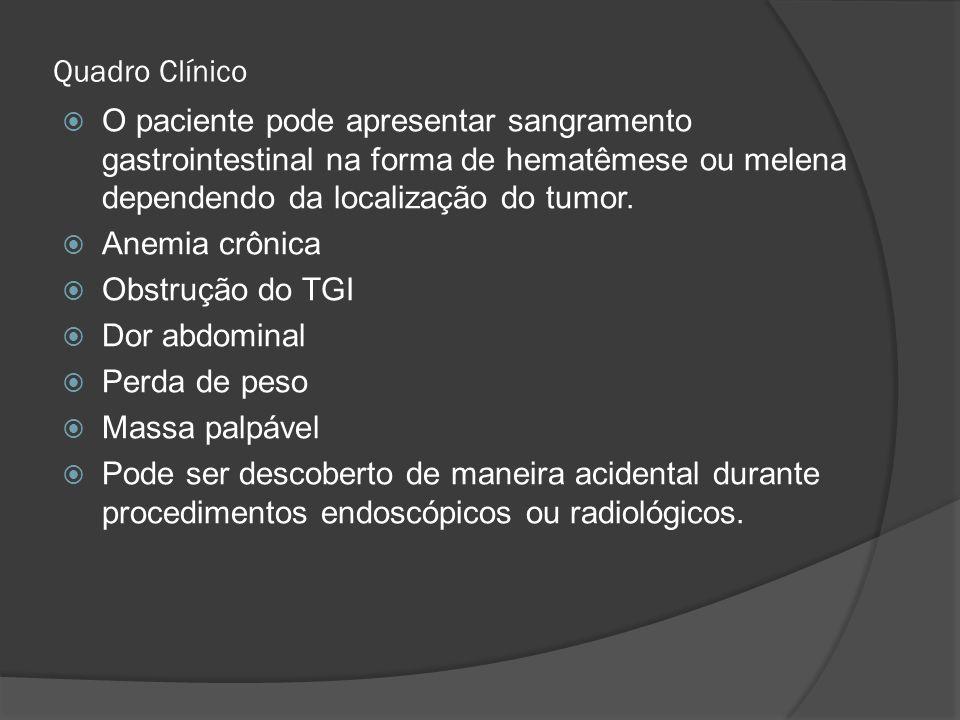 Quadro Clínico O paciente pode apresentar sangramento gastrointestinal na forma de hematêmese ou melena dependendo da localização do tumor.