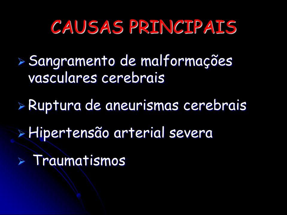 CAUSAS PRINCIPAIS Sangramento de malformações vasculares cerebrais