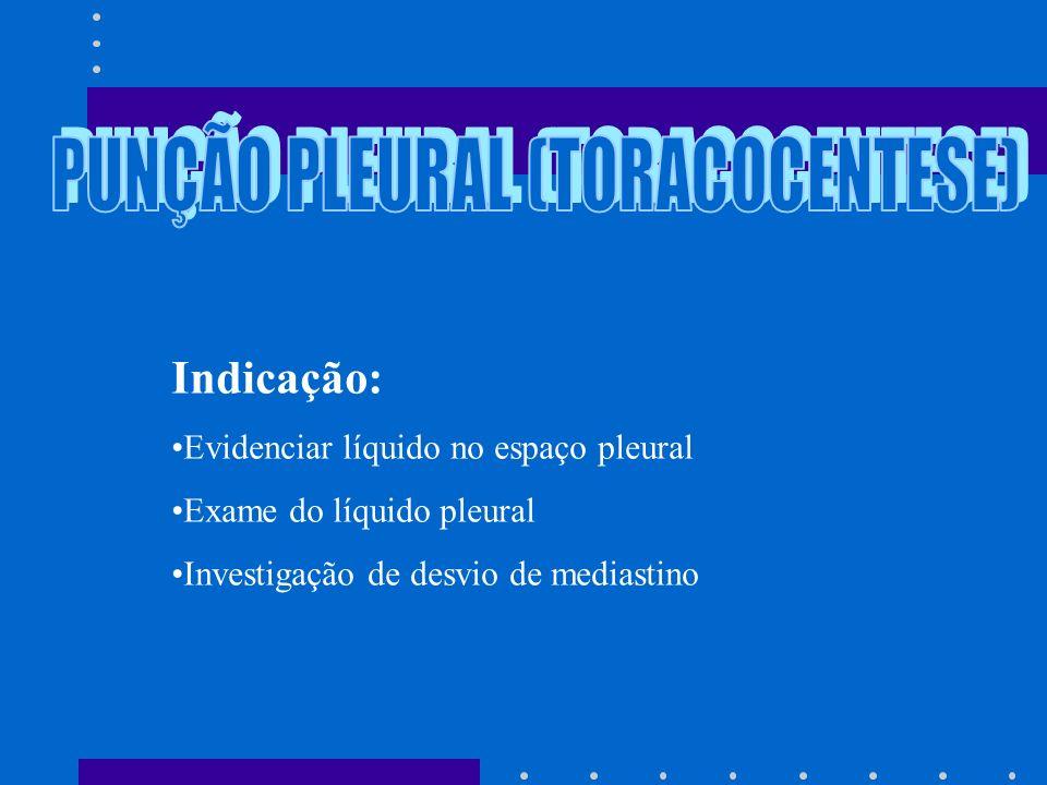 PUNÇÃO PLEURAL (TORACOCENTESE)