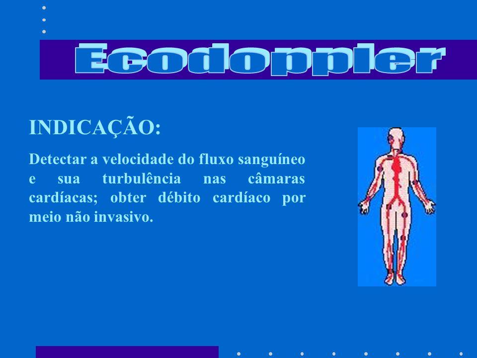 Ecodoppler INDICAÇÃO: