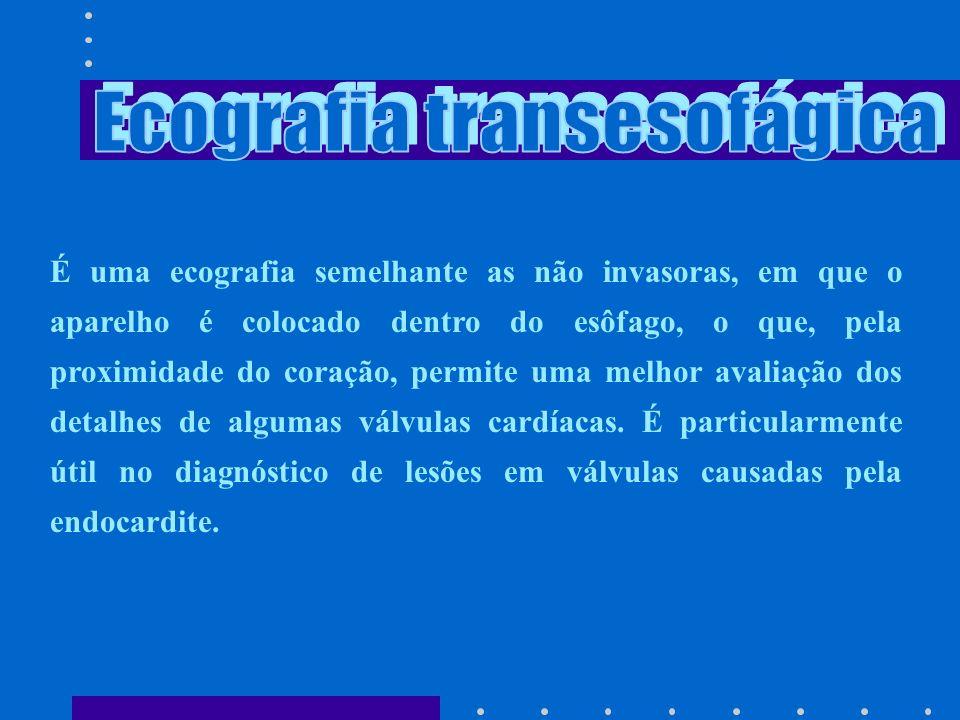 Ecografia transesofágica