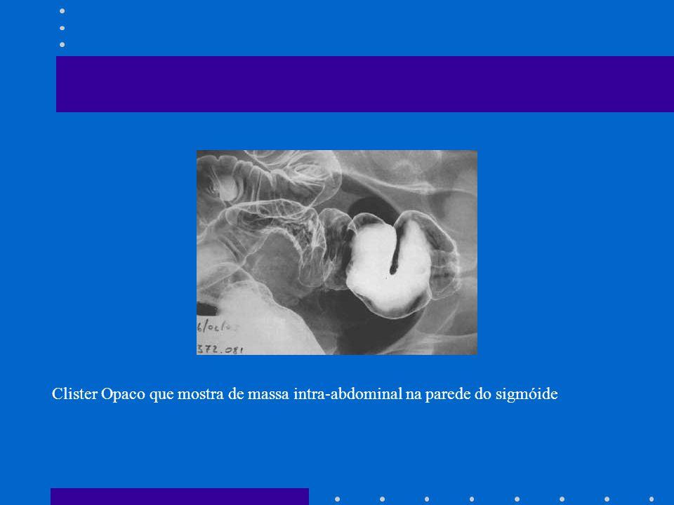 Clister Opaco que mostra de massa intra-abdominal na parede do sigmóide