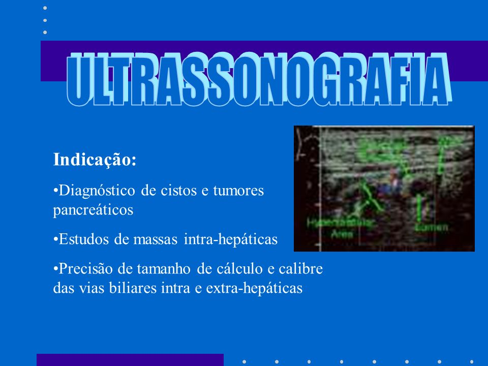 ULTRASSONOGRAFIA Indicação: