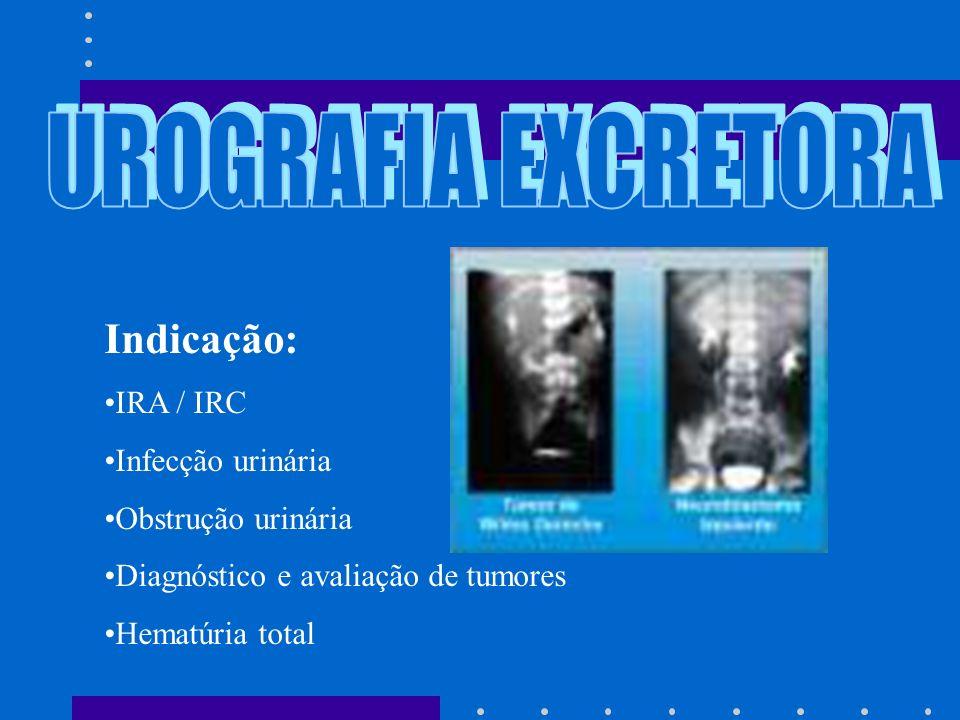 UROGRAFIA EXCRETORA Indicação: IRA / IRC Infecção urinária