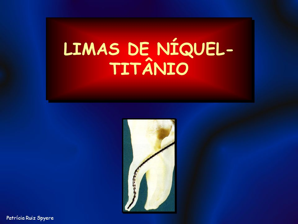LIMAS DE NÍQUEL-TITÂNIO