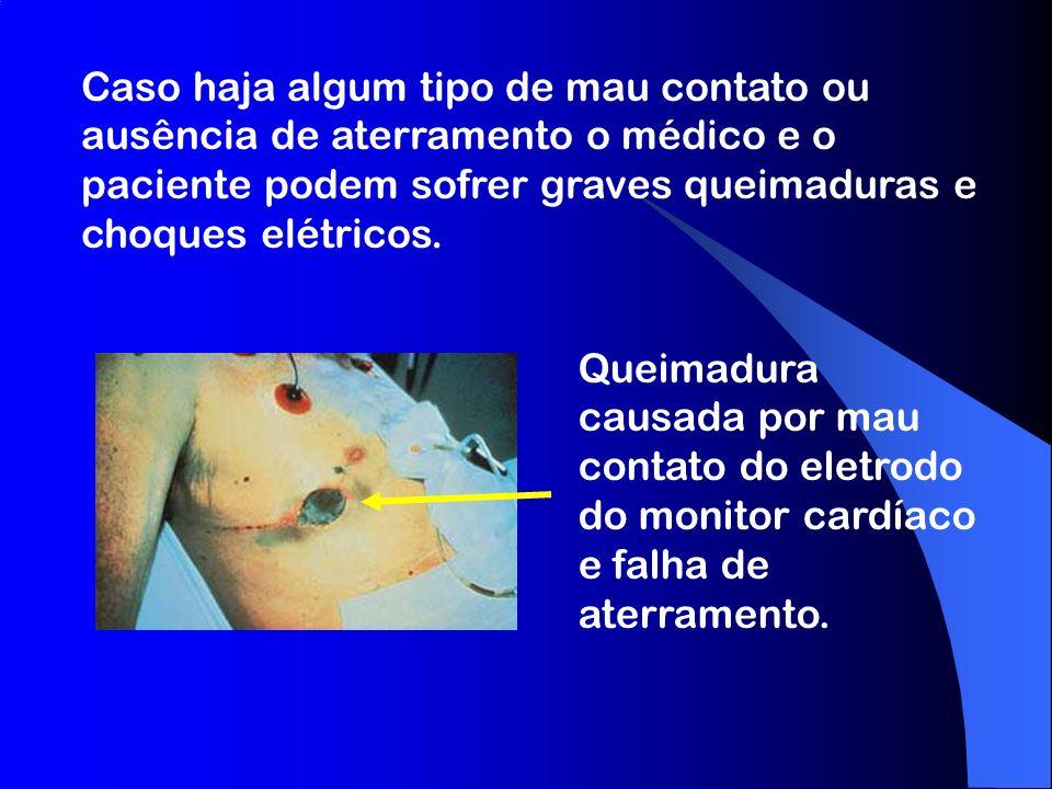 Caso haja algum tipo de mau contato ou ausência de aterramento o médico e o paciente podem sofrer graves queimaduras e choques elétricos.