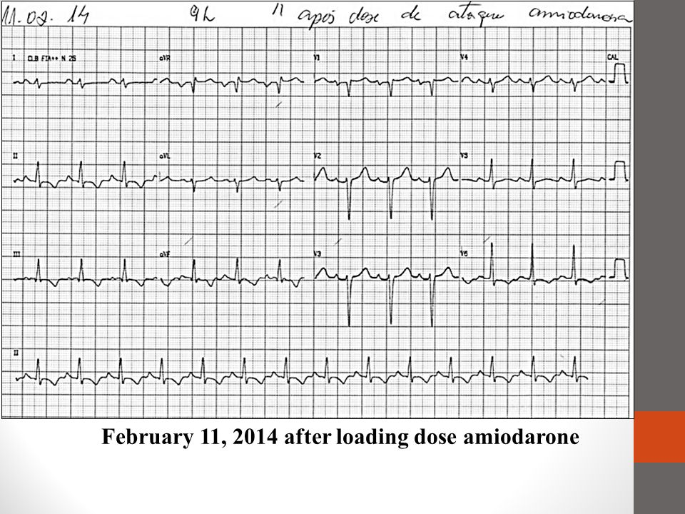 February 11, 2014 after loading dose amiodarone