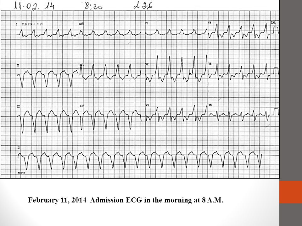 February 11, 2014 Admission ECG in the morning at 8 A.M.