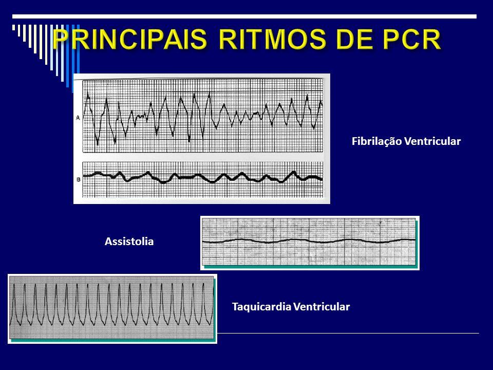 PRINCIPAIS RITMOS DE PCR