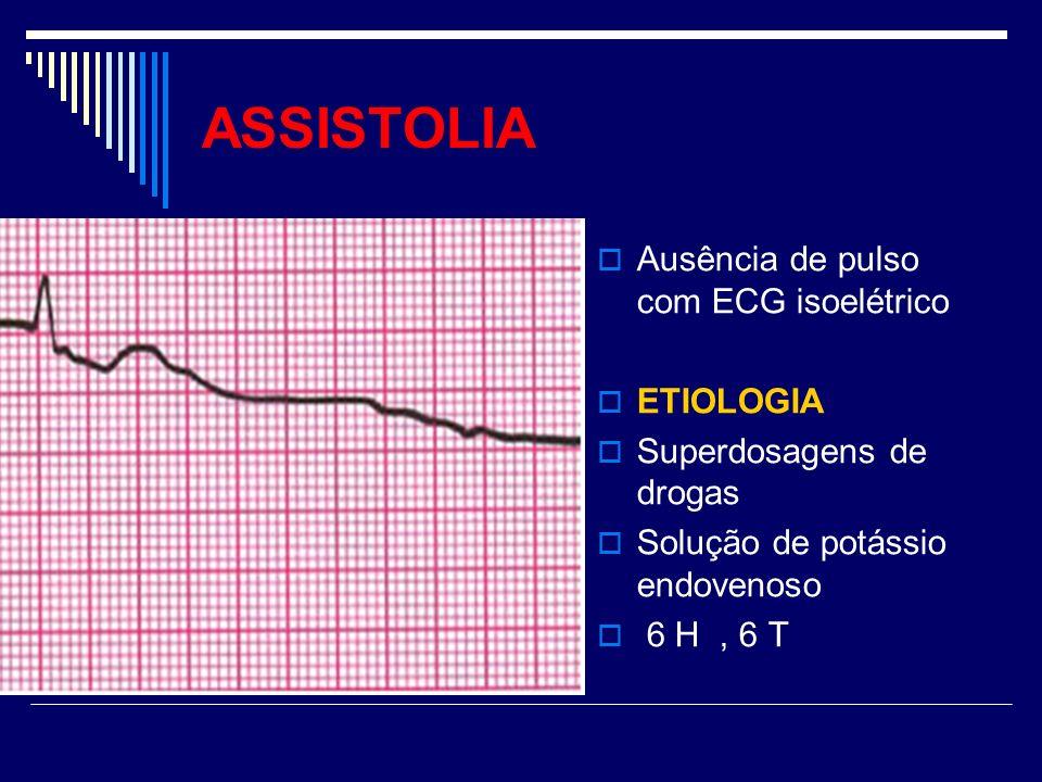 ASSISTOLIA Ausência de pulso com ECG isoelétrico ETIOLOGIA