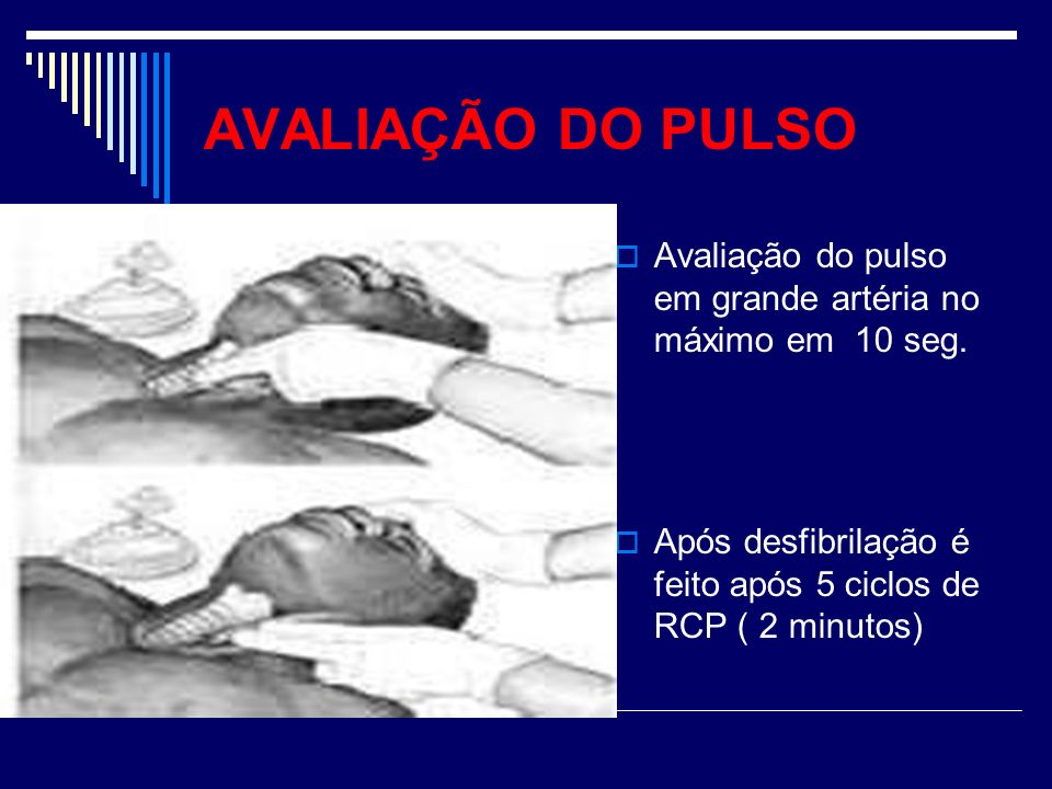 AVALIAÇÃO DO PULSO Avaliação do pulso em grande artéria no máximo em 10 seg.