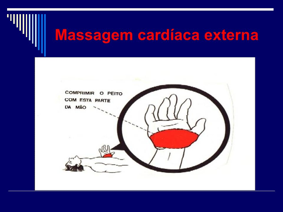 Massagem cardíaca externa
