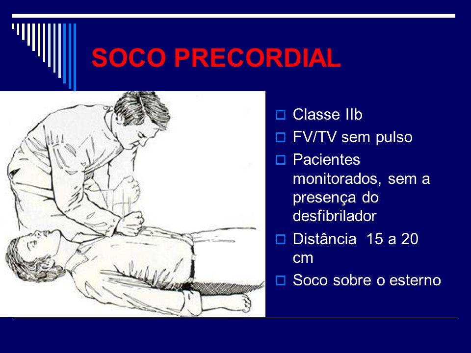 SOCO PRECORDIAL Classe IIb FV/TV sem pulso