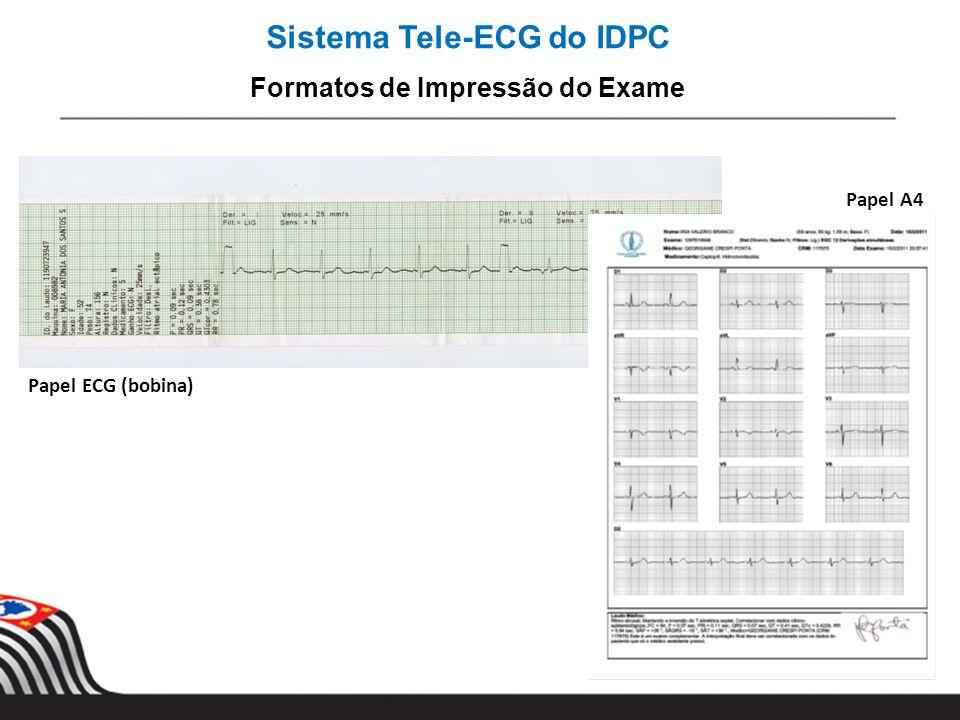 Sistema Tele-ECG do IDPC Formatos de Impressão do Exame